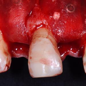 Screw System Professional: Osteosyntheseschrauben für die Knochenaugmentation